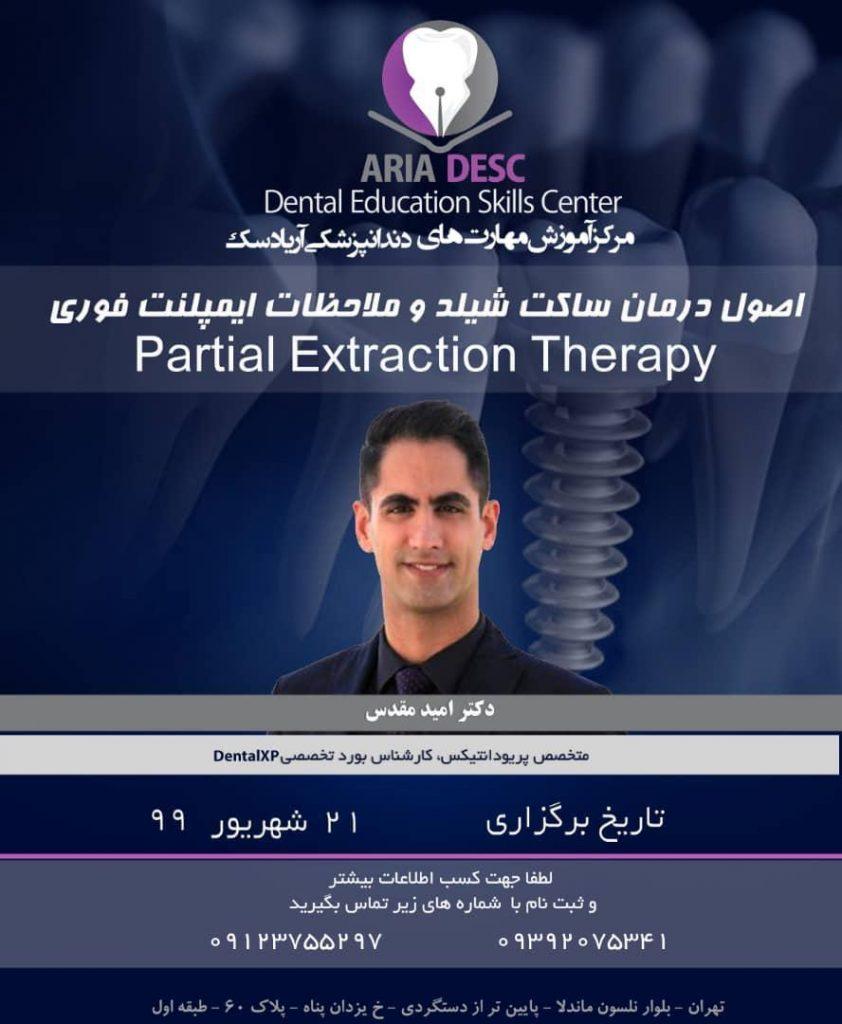 اصول درمان ساکت شیلد در دندانپزشکی 0